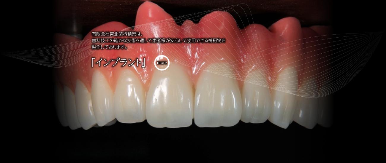 有限会社東北歯科精密は、歯科技工の確かな技術を通して患者様が安心して使用できる補綴物を製作しております。「インプラント」